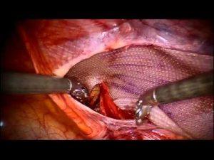 robotic-ing-hernia
