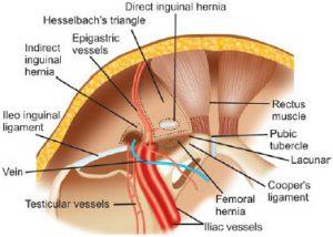 lap-femoral-1